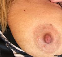 Large Nipples