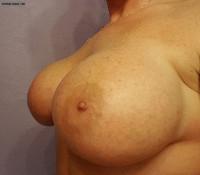 Milf Nude Selfie