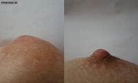 Soft Nipple
