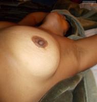 Brown Nipple