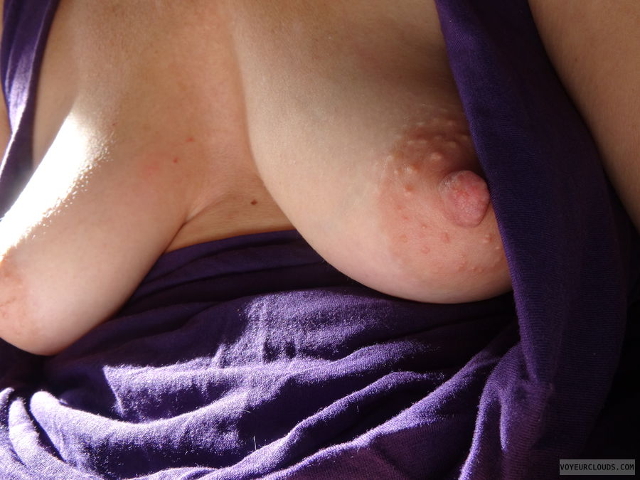Nipple, Areola, Flash