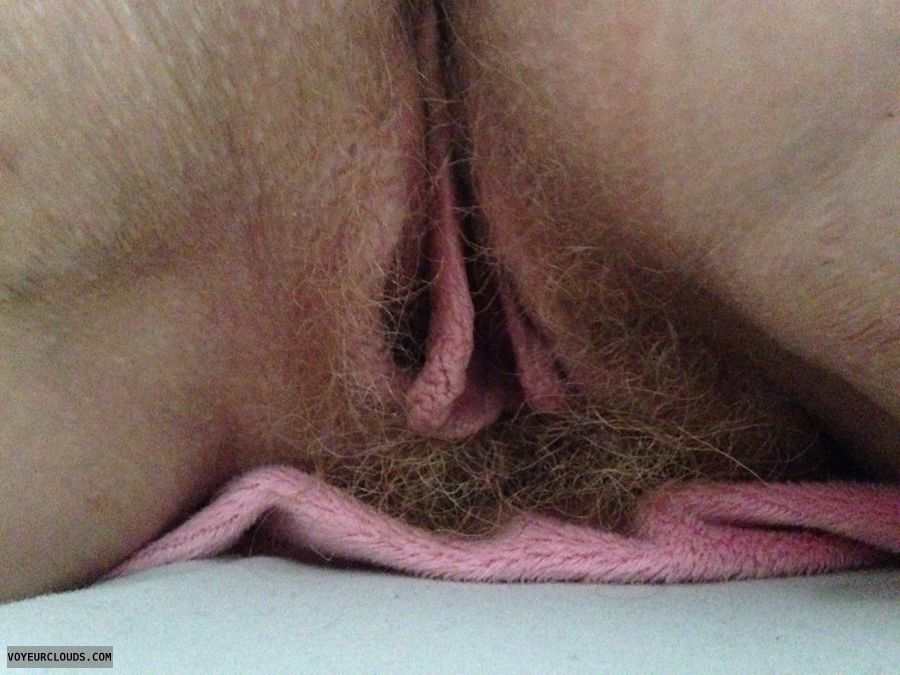 large labia, hairy